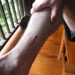 A leech bite is harmless but bleeds for a long time.